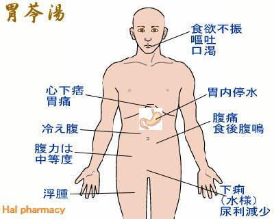 胃苓湯(平胃散+五苓散)