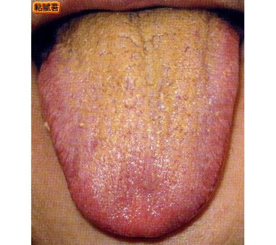 舌苔が多く粘りがある