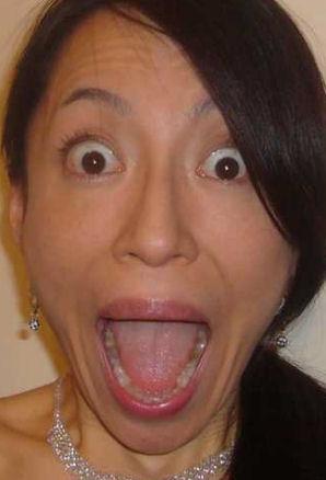 舌診の事例1