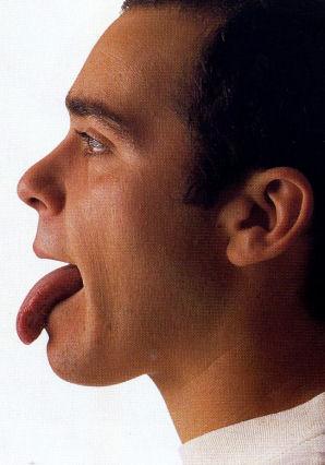 舌診の事例2