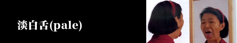 淡白舌(浅紅舌)