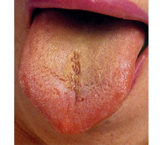 舌苔が黄色く多い